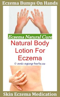 What does eczema look like on face.Is evening primrose oil good for eczema.Socks for eczema sufferers - Eczema Cure. Face Eczema, Nummular Eczema, Eczema Causes, Severe Eczema, Eczema Symptoms, Eczema Relief, Infant Eczema, Itch Relief, Toddler Eczema
