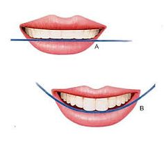 Resultado de imagen para odontologia estetica