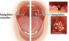 La mejor forma de eliminar la amigdalitis y el dolor de garganta en tan solo 2 horas | Algo Interesante
