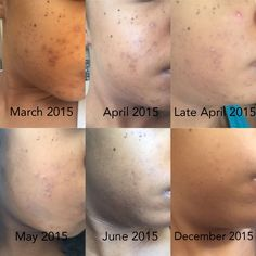 MY SKIN LOOKED A MESS! HERE'S HOW I GOT RID OF MY HYPERPIGMENTATION - Sheryll Skincare Story before and after