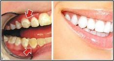 Top Oral Health Advice To Keep Your Teeth Healthy. The smile on your face is what people first notice about you, so caring for your teeth is very important. Unluckily, picking the best dental care tips migh Healthy Teeth, Healthy Tips, Healthy Food, Tartar Removal, Plaque Removal, Tooth Sensitivity, Best Teeth Whitening, Oral Hygiene, Oral Health