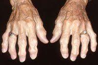 Η ΔΙΑΔΡΟΜΗ ®: Πως να αντιμετωπίσετε την οστεοαρθρίτιδα