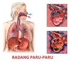 cara mengobati radang paru-paru dengan Jelly Herbal | Obat Batuk Berdarah