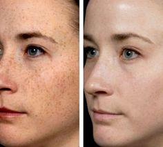 Le photomodèle avec la violation de la pigmentation de la peau
