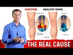 Why Do You Get Varicose Veins? - YouTube Varicose Veins Causes, Varicose Vein Remedy, Palmer College Of Chiropractic, Doctor Of Chiropractic, Dr Eric Berg, Dr Berg, Too Much Estrogen, Menopause, Health Education