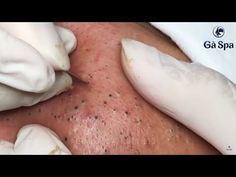 Best Blackhead Removal Ever – Facial Acne Treatment – Gà Spa – Beauty and Fashion Tips and Ideas Blackheads On Face, Pimples, Spa Website, Acne Soap, Pimple Popping, Acne Facial, Remove Acne, Haircuts With Bangs, Tips