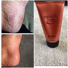 Nu Skin Sole solution 🍃 Get your feet feeling and looking sexy for summer time and wear your favorite sandals. Our sole solution keeps your feet smooth and healthy looking gets rid of those ugly dried cracked skin. Interested hit me up! Dry Cracked Feet, Cracked Skin, Nu Skin, Oily Skin, Epoch Sole Solution, Dry Skin Causes, Dark Eye Circles, Whitening Face, Skin Products