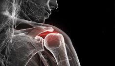 Inflammation, or your body's response to injury or infection, has been associated with arthritis, heart disease, diabetes, and even cancer.