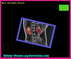 Nails And Kidney Disease 114414 - Start Healing Your Kidneys Today!