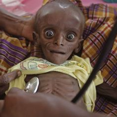 Seven month old child from Kenya