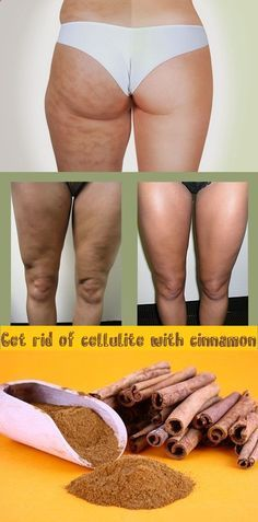 Get rid of cellulite with cinnamon