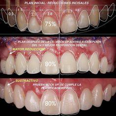 Perfect Dental Work by - The science ask how? The art ask why. Dental Design, Dental Art, Teeth Health, Dental Health, Dental Aesthetics, Dental Anatomy, Restorative Dentistry, Dental Assistant Jobs, Dental Veneers