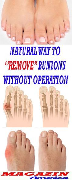 Secret Health Remedies Natural Way To ''Remove'' Bunions Without Operation Herbal Remedies, Health Remedies, Home Remedies, Holistic Remedies, Home Health, Health And Wellness, Health Fitness, Koko Fitness, Natural Cures