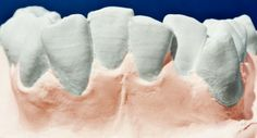 Los dientes están amontonados, apiñados o mal colocados por culpa de una falta de espacio en el hueso maxilar respeto el tamaño de los dientes