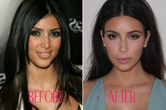 This before and after picture shows in disputable proof that Kim Kardashian got a nose job. The lighting in the after picture really shows the subtle lines and contours of the shape of her nose.