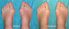 May valgus ka? Imperfection Is Beauty, Natural Health Remedies, Health And Beauty, Makeup, Health Care, Health Tips, Health And Wellness, Self Care, Healthy Bodies