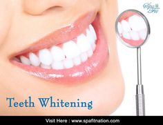 Gift yourself a whiter, brighter smile with #SpaFit. Visit Here : www.spafitnation.com  Call Us today to book your appointment. #TeethWhitening iLiveFit LIVEFIT! JOINTHEFITREVOLUTION!