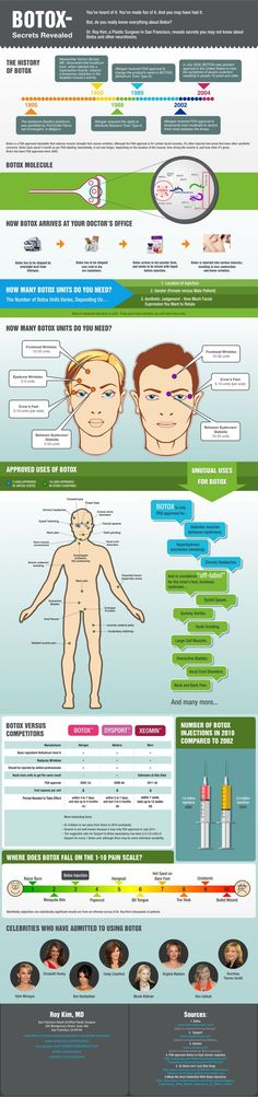 Botox infographic!  http://www.timelessskinsolutions.com