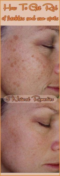 How to get rid of freckles and sun spots - 5 Natural remedies Warts On Hands, Warts On Face, Get Rid Of Warts, Get Rid Of Blackheads, Remove Warts, Getting Rid Of Freckles, How To Remove Freckles, Skin Tag Removal, Sun Spots Removal