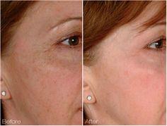 Review of Cutera 2D Skin Rejuvenation Procedure