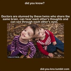 .Doctors are stunned by these twins who share the same brain, can hear each other's thoughts and see through each other's eyes?  But I have a question...WHY ARE THEY SHOCKED?  The Answer to any of their questions are answered with the beginning of this pin...THEY SHARE THE SAME BRAIN!  It ain't rocket science.