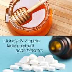 Banish acne spots with honey or aspirin. Swear by this. I actually just did this yesterday on a zit and today its almost completely gone!