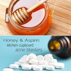 Banish acne spots with honey or aspirin. #Homeremedies FTW!