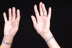 Lociones para manos muy secas y agrietadas. Las manos dolorosamente secas y agrietadas pueden ser el resultado de lavárselas con frecuencia, de tener una piel sensible o del clima frío del invierno. Cualquiera sea el motivo, la piel agrietada duele y requiere un cuidado especial para prevenir y ...