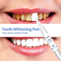 Teeth Whitening Pen-Clean Stains Brighten Teeth - Oral and Dental Health Center 2020 Quick Teeth Whitening, Charcoal Teeth Whitening, Natural Teeth Whitening, Scar Removal Cream, Acne Scar Removal, Best Blackhead Remover, Steam Hair Straightener, Teeth Care, Smile Teeth