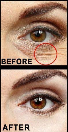 "Secret Beauty Tips To Get Rid Of Wrinkles, Dark Circles Crows Feet""alt=""Top Secret Beau""/></br></br>Top Secret Beauty Tips To Get Rid Of Wrinkles, Dark Circles Crows Feet</br> Under Eye Wrinkles, Prevent Wrinkles, Face Wrinkles, Under Eye Wrinkle Treatment, Beauty Skin, Health And Beauty, Beauty Makeup, Skin Breaking Out, Skin Tips"