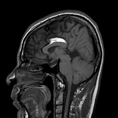 A lipoma (benign growth) of the corpus callosum (the connection between the cerebral hemispheres).