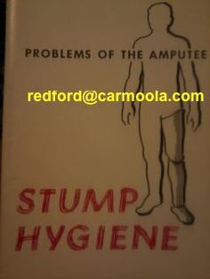"""Stump Hygiene: problems of the amputee"" After amputation, the #skin of the stump is subject to irritation ... injury ... infection. Care of this skin is ... a vital pat of rehabilitation.    This ... offers some #basic #rules to be used in the care of the stump. ... illustrations show leg amputees, the rules of stump hygiene are also applicable to arm amputees ... 1961 The Regents of the University of California S. William Levy, M.D. and Gilbert H. Barnes, M.D. illustrated by Thomas D…"