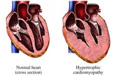 Cardiomyopathy: Muscle Growth You Don't Want