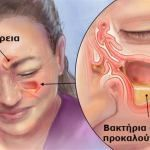 Watch This Video Exalted Remedies for Sinusitis and Allergies Ideas. Graceful Remedies for Sinusitis and Allergies Ideas. Sinus Remedies, Allergy Remedies, Natural Remedies, Cold Remedies, Infection Des Sinus, Migraine, Troubles Digestifs, Inflammation Causes, Stress