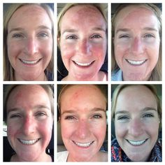 Chemical peels before and after diy facial care pinterest beauty tips in uk do it yourself jessner peel at home solutioingenieria Image collections