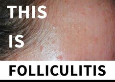 Malassezia Folliculitis – Everything You Need to Know Acne Treatment, Hair Loss Causes, Best Lotion, Dandruff, Active Ingredient, Healthy Skin, Need To Know, Everything
