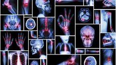 One Gene Mutation Links Three Mysterious, Debilitating Diseases
