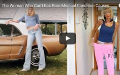 Amazing Model Who Can't Eat : Rare Medical Condition Causes Involuntary Starvation WATCH VIDEO http://www.theamazingimages.com/2015/08/amazing-model-who-cant-eat-rare-medical.html