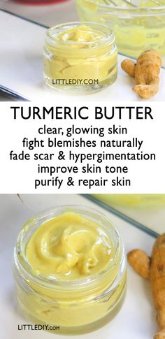 TURMERIC BUTTER for beautiful skin,Turmeric is a wonder ayurvedic ingredient and has amazing skin benefits! It is widely used in both commercial products and home remedies when it comes. Diy Skin Care, Skin Care Tips, Skin Tips, Homemade Skin Care, Piel Natural, Tips Belleza, Natural Skin Care, Beauty Skin, Natural Remedies