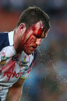 Gavin Cooper of the Cowboys washes away blood coming from a head wound during the round nine NRL match between the South Sydney Rabbitohs and the North Queensland Cowboys at ANZ Stadium on May 10, 2013 in Sydney, Australia.