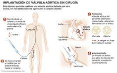 ¿Cómo implantar una válvula aórtica sin cirugía?