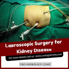 LaparoscopicSurgery involves smaller incisions and has a faster recovery. LaproscopicSurgeryForKidneyDisease is succeessfully done at Anand's Uro-Andrology Clinc, Chennai