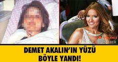 Şarkıcı Demet Akalın'ın Instagram'da paylaştığı yanık yüzlü fotoğrafı sosyal medyada olay oldu.