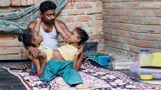 Conjoined Sisters Find Love With The Same Man - Yahoo Lifestyle India