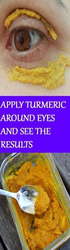 SHE STARTED APPLYING TURMERIC AROUND HER EYES-Apply the mixture of ¼ of a teaspoon turmeric and 1 teaspoon of coconut oil around the eyes. Wait for 10 minutes and then wash your face with warm water.