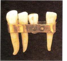 ¿Sabías que....? alrededor del año 700 a.C. comenzaban a fabricar #Prótesis #Dentales hechas de dientes de animales, fijadas a los demás dientes con bandas de oro.