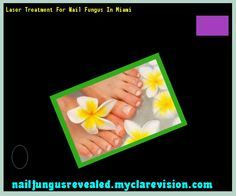 Laser treatment for nail fungus in miami - Nail Fungus Remedy. You have nothing to lose! Visit Site Now