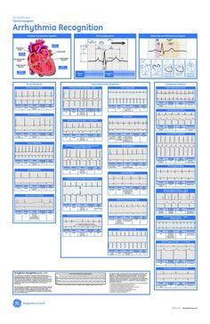 Cardiac Dysrhythmia | scope of work template