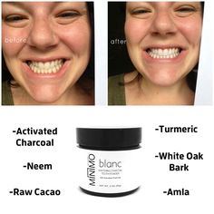 ¥ Activated Charcoal for whitening teeth and drawing out toxins. ¥ Raw Cacao helps remineralize teeth and fight tooth decay (Nature is awesome!) ¥ White Oak Bark to help tighten receding gums and cleanse teeth. ¥ Arrowroot Powder is natural anti-septic and anti-inflammatory herb. ¥ Amla fights bad breath. mymimo.com
