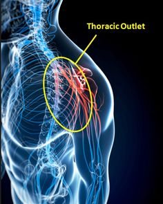Thoracic Outlet Syndrome - LeggeHealth.ca